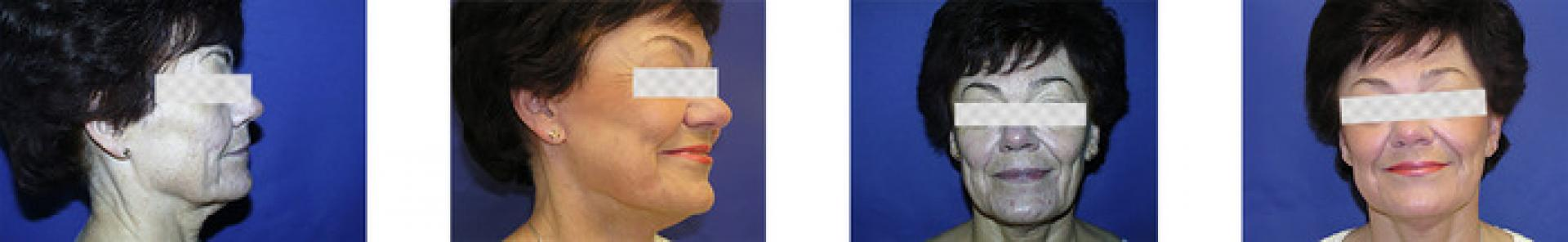 facelift smas2.jpg